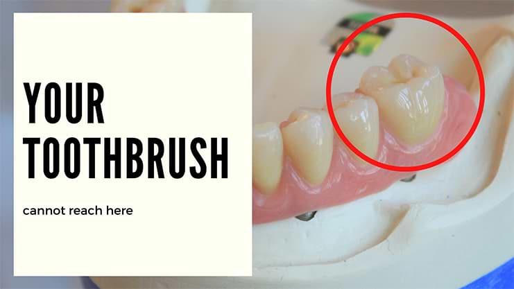 toothbrush cannot reach